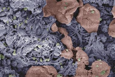 Nanoparticles (green) help form blood clots in injured liver